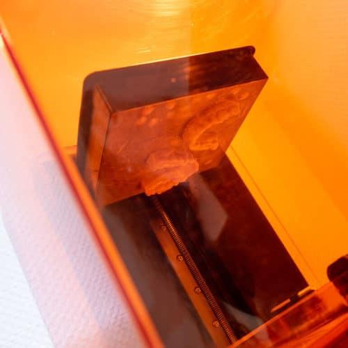KFO Stelz | 3D-Drucker
